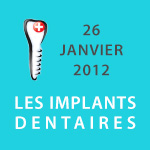 Conférence sur le thème « Les Implants Dentaires »